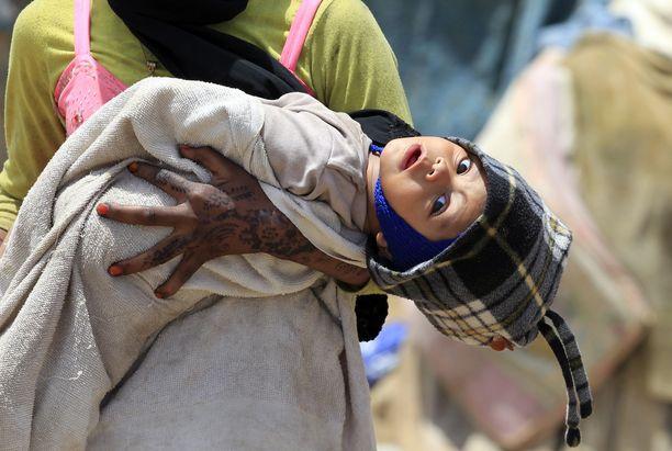 Lasten aliravitsemus on vakava ongelma sisällissodan runtelemassa Jemenissä, jolle maailma on pitkälti kääntänyt selkänsä.