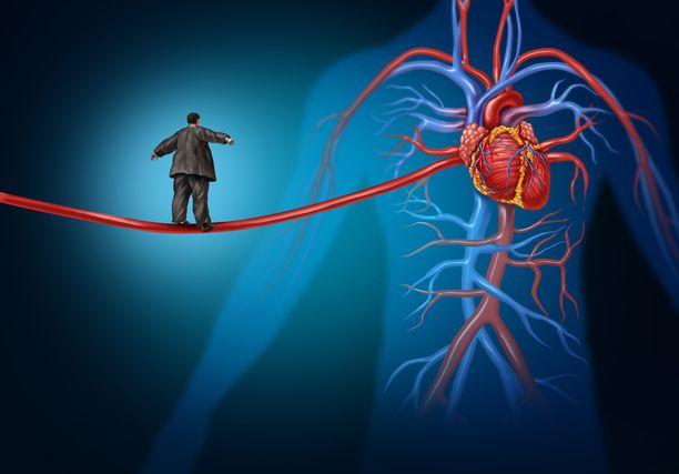 Ylipaino on yksi tekijä, joka kohottaa verenpainetta.