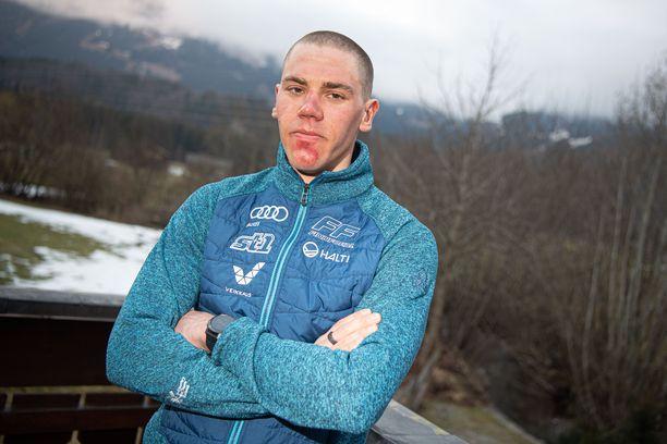 Markus Vuorela on toipunut kilpailukuntoon.