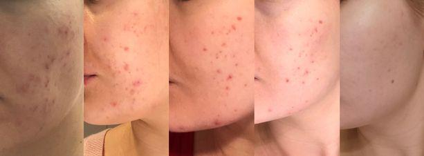 Kosmetologilla kannattaa käydä sarjahoitona: näin voi saada pysyviä tai ainakin pitkäkestoisia tuloksia. Toimittajan iho puhdistui selvästi kuukauden mittaisen  hoitosarjan aikana (kuva 1-4) ja säntillinen, oikeanlaisten tuotteiden käyttäminen kirkasti ihoa (kuva 5). Kuvista näkee selkeästi paranemisen ihossa, vaikka kuvat ovatkin otettu erilaisissa valoissa.