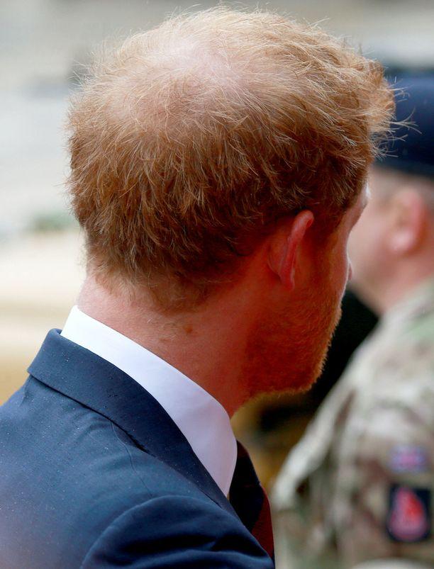 Prinssi on aito punapää.