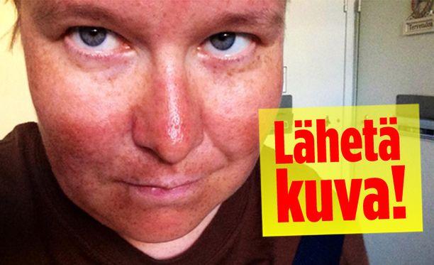 """Iltalehden toimittaja hankki perinteiset """"pandat"""" auringossa..."""