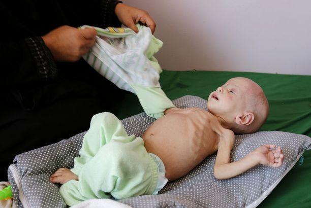 YK on varoittanut, että Jemeniin saattaa iskeä vuosikymmeniin pahin nälänhätä, mitä maailmassa on koettu. Kuva otettu Sanaassa 15. marraskuuta.