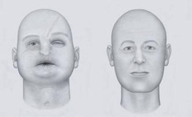 Vaativa kasvojen kudosten siirto tehdään vain silloin, kun operaatio on viimeinen mahdollinen keino auttaa potilasta takaisin normaaliin elämään.