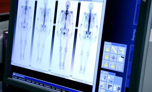 Yksityinen syövänhoitoon erikoistunut klinikka Docrates aloitti toimintansa vuonna 2007. Nykyisin se houkuttelee hoitoihin potilaita myös Ruotsista.