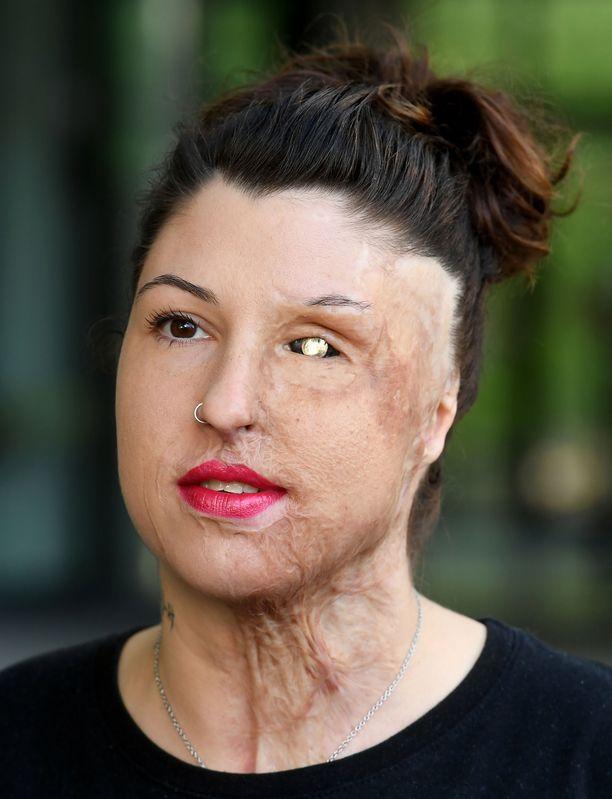 Vanessalle on tehty yli 30 korjaavaa leikkausta.
