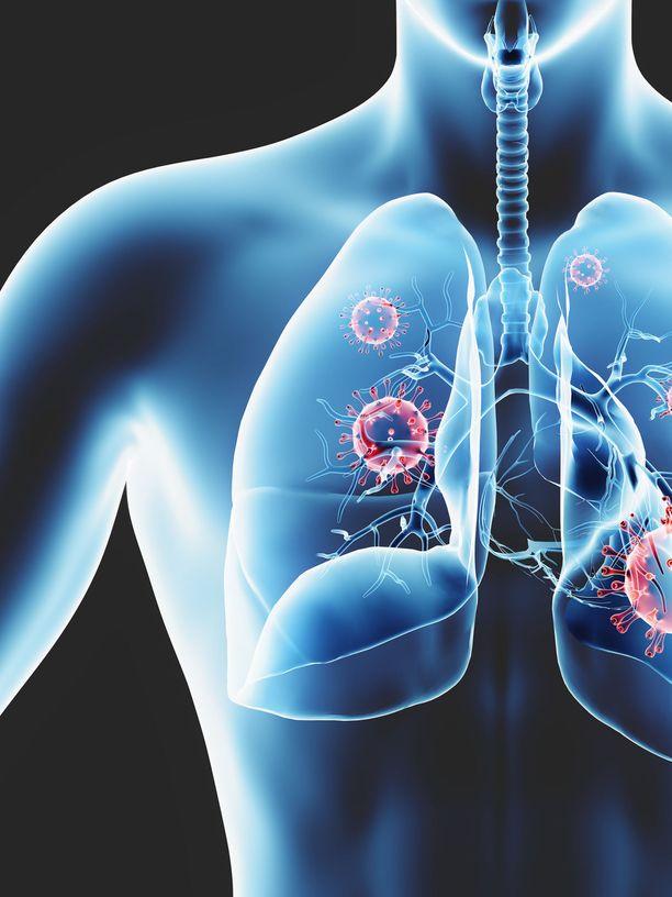 Koronavirusinfektion yleiset oireet ovat yskä ja korkea kuume.