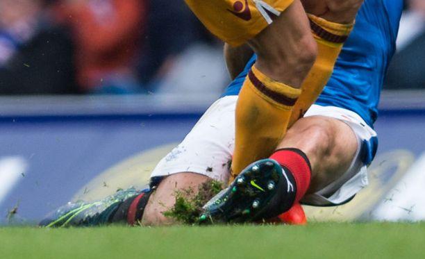 Walesilaisen jalkapalloilijan hyppytaklaus mursi vastustajan sääri- ja pohjeluun. Kuvituskuva.