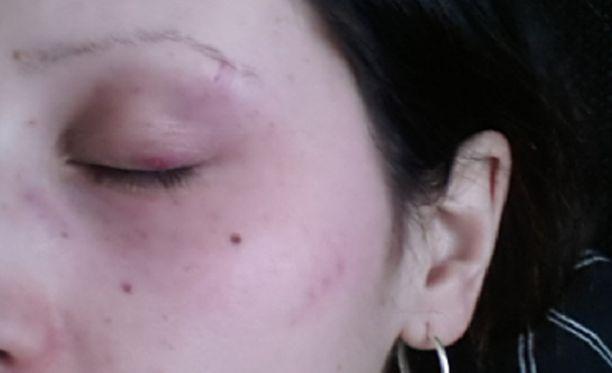 Nainen sai pahoinpitelystä ruhjeita kasvoilleen.