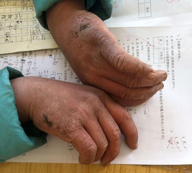 Pojan kädet olivat pahasti kohmeessa.