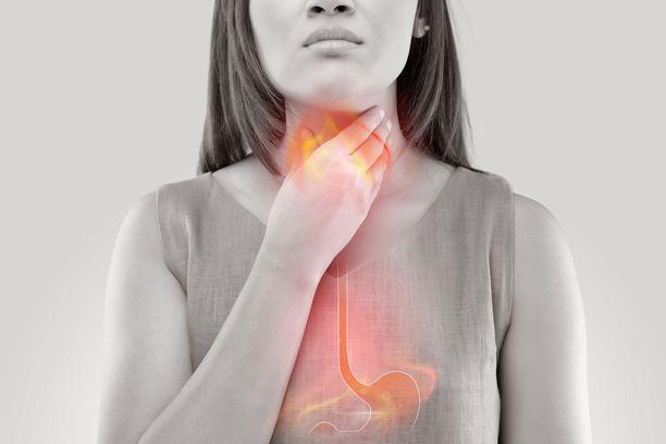 Eosinofiilinen ruokatorvitulehdus muistuttaa oireiltaan refluksitautia.