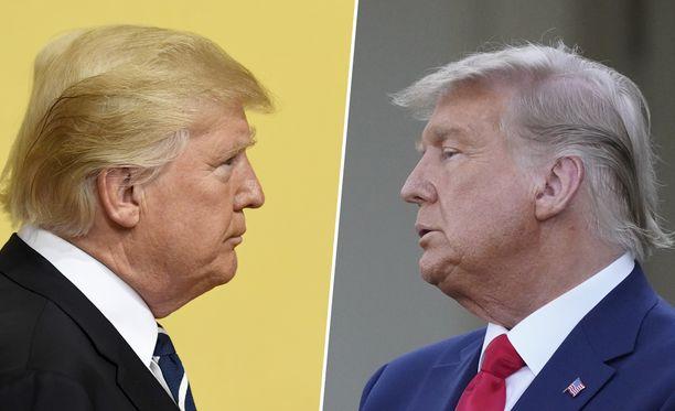 Keltaoranssi on vaihtunut 74-vuotiaalla ehkä normaalimmalta näyttävään harmaaseen.