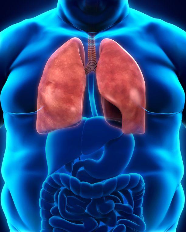 Tutkimuksen mukaan rasvan kertyminen keuhkoihin voi muuttaa hengitysteiden rakennetta tavalla, joka lisää astmariskiä.