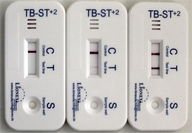 Tuberkuloosi on lääkehoidolla parannettavissa oleva infektiosairaus.