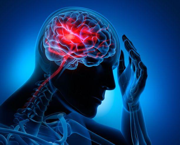Aivoverenkiertohäiriöön sairastuu lähes joka kolmas suomalainen. Sairaudesta jää usein vaikeitakin haittoja.