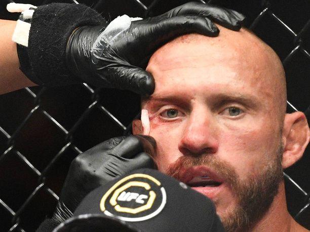 """Kokenut UFC-ottelija Donald """"Cowboy"""" Cerrone joutui erikoisella tavalla teknisesti tyrmätyksi."""