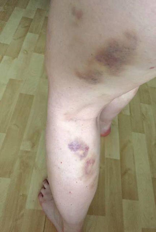 Niinan jalat näyttävät tältä yleensä koko kesän. Hyttysenpistot aiheuttavat mustelmia ja niitä kutittaa päivittäin.