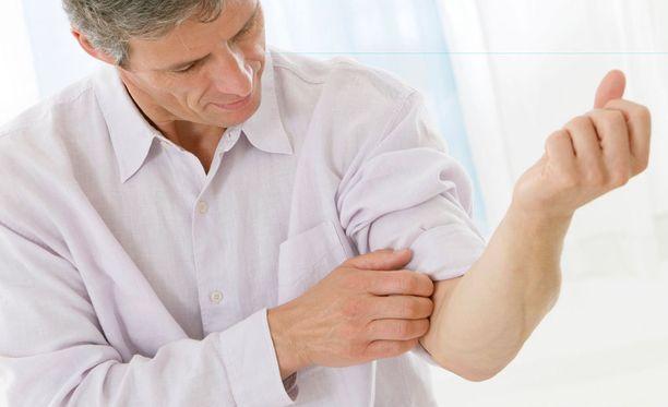 Stressi voi voimistaa ihosairauksien oireita.