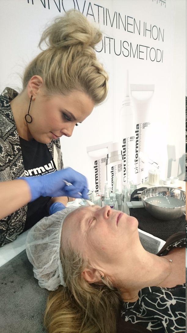 Pinnoitushoitoon kuuluu tehoaineiden imeyttäminen ihoon vanupuikolla.