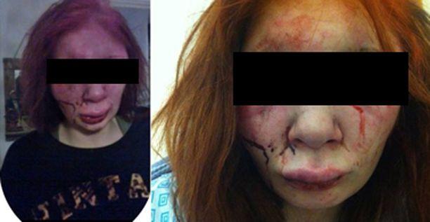 Pahoinpitelyn kohteeksi joutunut tyttö julkaisi itsestään kuvat Facebookissa.