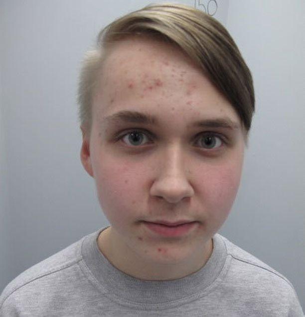 Kuvasta poiketen Patrikilla on sivuilta kaljuksi leikatut hiukset.