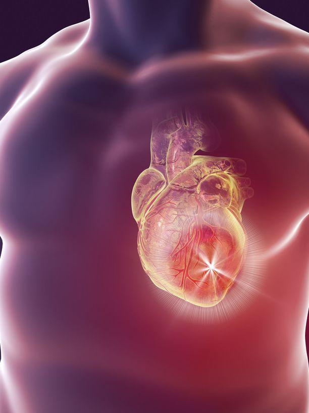 Sepelvaltimotauti on yleisin kuolemaan johtava verisuonisairaus.