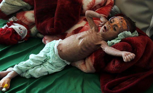 YK:n mukaan Jemeniä uhkaa entistä pahempi nälänhätä, jos avustuskuljetuksia ei sallita uudelleen.