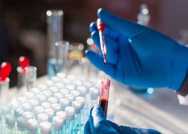 Vuonna 2012 tehtyä pandemiasuunnitelmaa voidaan hyödyntää myös koronavirus COVID-19 aiheuttamaan pandemiaan.