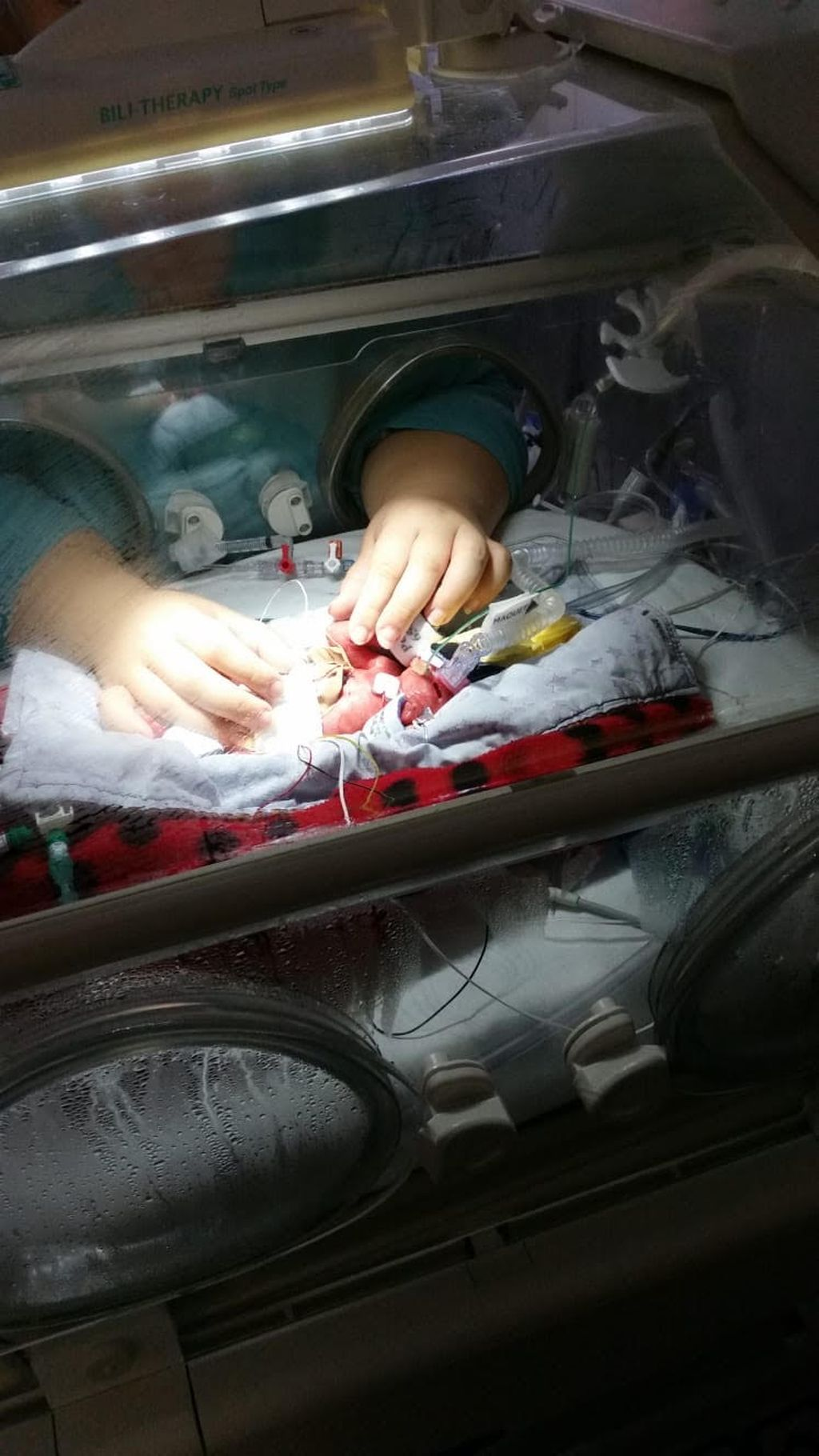 Äidin kosketus. Ensimmäiset kerrat äiti pääsi hoitamaan pientä tyttöään keskoskaapin sisällä.