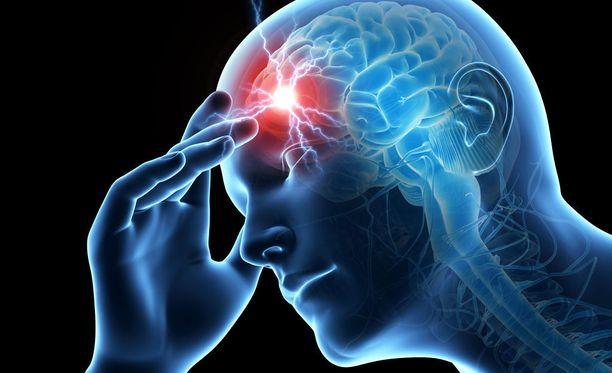 Muun muassa tupakointi, vähäinen liikkuminen, verenpainetauti, diabetes ja lihavuus ovat aivoinfarktin riskitekijöitä.