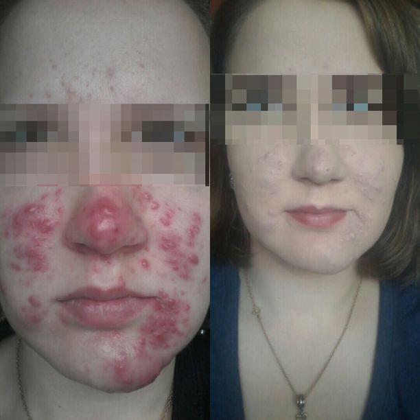 Vasemmalla Eveliina ilman meikkiä, oikealla akne on peitetty meikeillä.