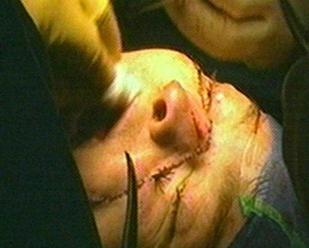 Leikkaus kesti 17 tuntia.