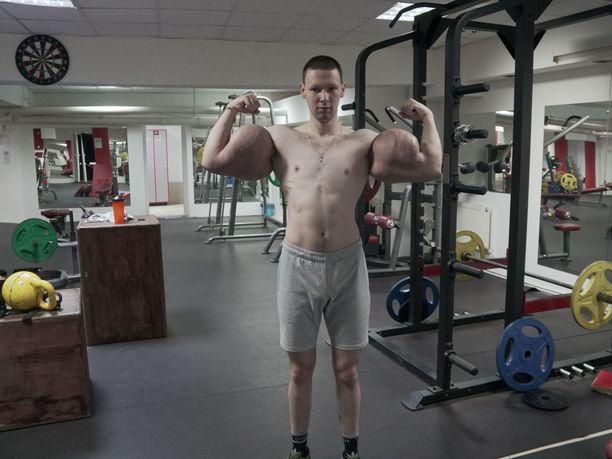 Kirill Tereshin täytti hauiksensa syntholilla.