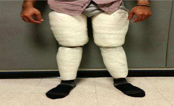 Yritys oli tuomittu epäonnistumaan. Yhdysvaltain rajaviranomaiset nappasivat tämän salakuljettajan lentokentältä New Yorkissa. Miehen jalat oli topattu kokaiinilla.
