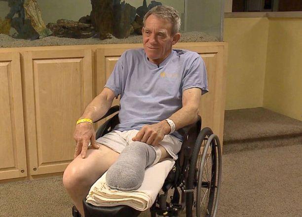 Kaser selvisi hengissä, mutta toisen jalkansa hän menetti polven alapuolelta.