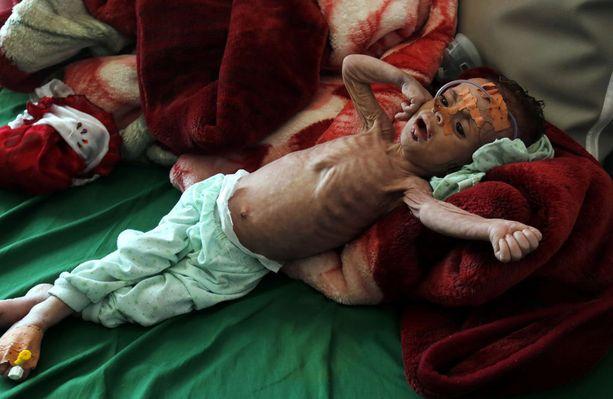 Jemenin pitkittynyt sota on aiheuttanut maahan paitsi laajan nälänhädän myös mittavan koleraepidemian. Kuvan lapsi on tuotu sairaalaan vakavan aliravitsemuksen vuoksi. Kuva marraskuulta 2017.