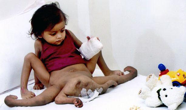 Ilman leikkausta kahdeksanraajainen Lakshmi Tatma olisi menehtynyt hyvin nuorena.