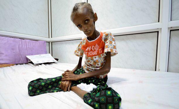 Luurangonlaiha 18-vuotias Saida Ahmad Baghili antoi kasvot Jemenen paljolti unohdetulle sodalle.