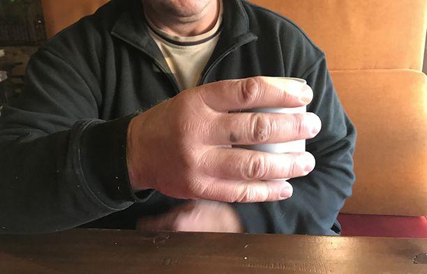 Riku Kiri kertoo, että sormien paksuus on ainakin osittain kovan treenin ansiota.