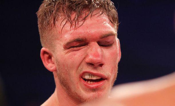 Nick Blackwell oli melko huonossa hapessa Chris Eubankin käsittelyn jälkeen.