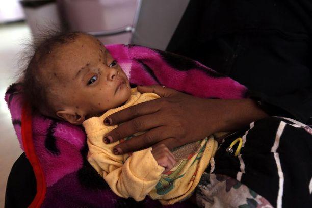 Vakavasti aliravittu jemeniläislapsi sairaalassa Sanaassa perjantaina.  Aliravitsemus aiheuttaa pysyviä vaurioita pienten lasten kehitykselle.