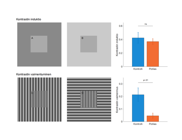 """Näyttää erilaiselta. Ylempi kuvio näytti sekä masennuspotilaille että vertailuryhmälle jokseenkin samalta. Alemmassa kuviossa vasemmalla keskellä olevan neliön kontrasti heikkeni """"tavallisilla ihmisillä"""" 20 prosenttia verrattuna alaoikealle, masennuspotilailla vain 5 %."""
