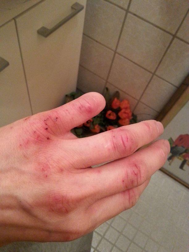 Vesan sormi leikkautui lähes irti työtapaturmassa ja jouduttiin lopulta amputoimaan. Nyt kädessä on hermokudoksesta koostuvia kasvaimia, ja mies kärsii kroonisista kivuista.