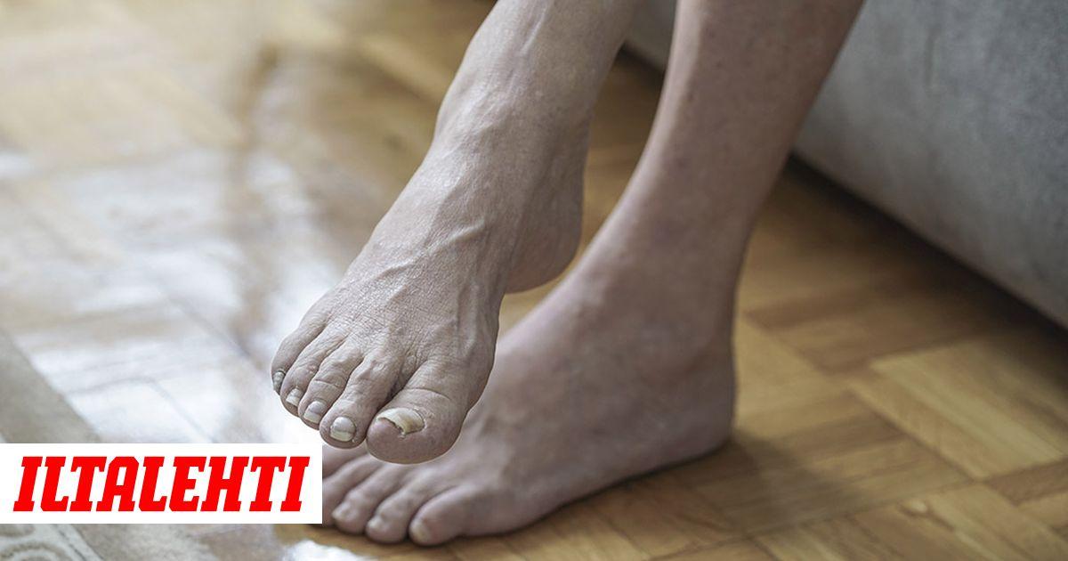 Turvottaako jalkoja  5 sairautta 803ac4f9a7
