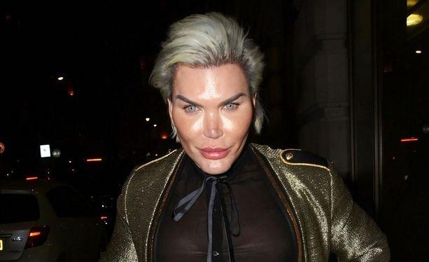 Ihmis-Ken eli Rodrigo Alves rakastaa kauneusleikkauksia ja on niiden kautta muuntautunut kuin toiseksi ihmiseksi.