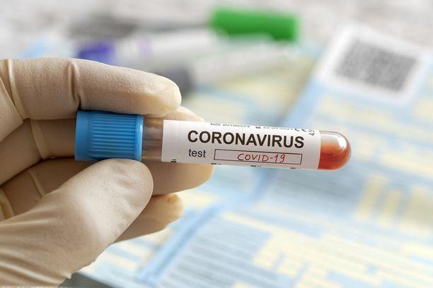 Kanta-Hämeen sairaanhoitopiiri on veloittanut poliklinikkamaksuja potilailta, joiden koronavirustestitulos on ollut negatiivinen. Tiistaina ilmoitettiin, että käytäntöä muutetaan. Kuvituskuva.