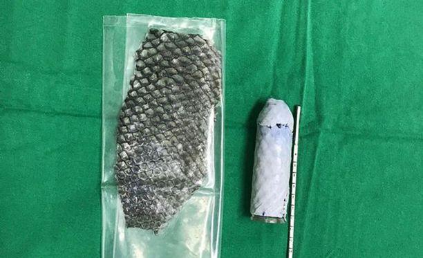 Tilapian nahka käärittiin akryyliputkun ympärille. Putki asennettiin kirurgisesti vaginan kohdalle tehtyyn aukkoon.