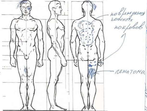 Sekä Viktor Filinkovilla että Igor Shiskinillä on runsaasti polttamalla tehtyjä jälkiä ympäri kehoa.