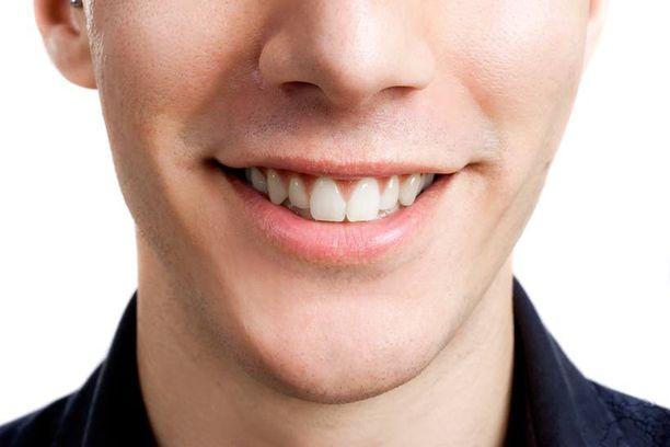 Suurin osa kauniimpaa hammasrivistöä tavoittelevista suomalaisista haluaa niin luonnollisen lopputuloksen, etteivät muut välttämättä edes huomaa muutosta.