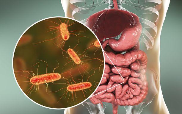 Suolistobakteeriston epätasapainon uskotaan johtavan moniin sairauksiin.